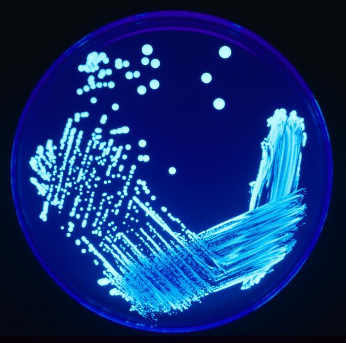 Aïllament per sembra escocesa de Legionella sp. sota il·luminació ultraviolada. Font Viquipèdia
